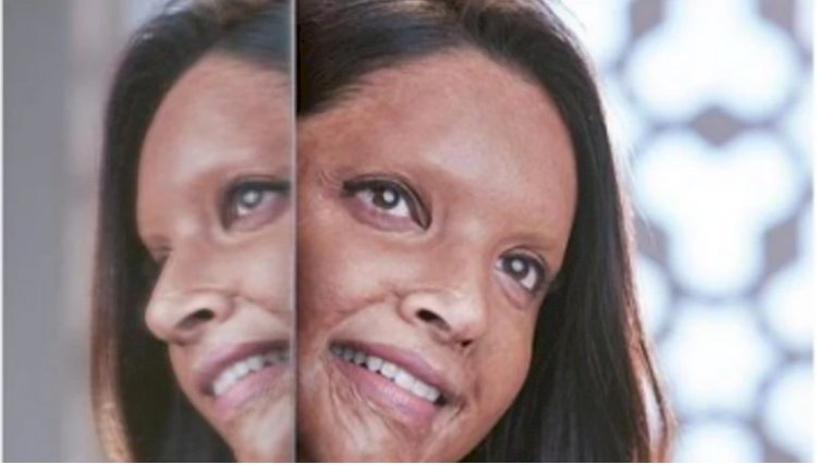 Chhapaak trailer out: Deepika Padukone turns acid survivor