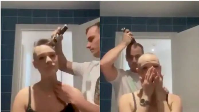 Man goes bald after shaving girlfriend's head who suffers from alopecia